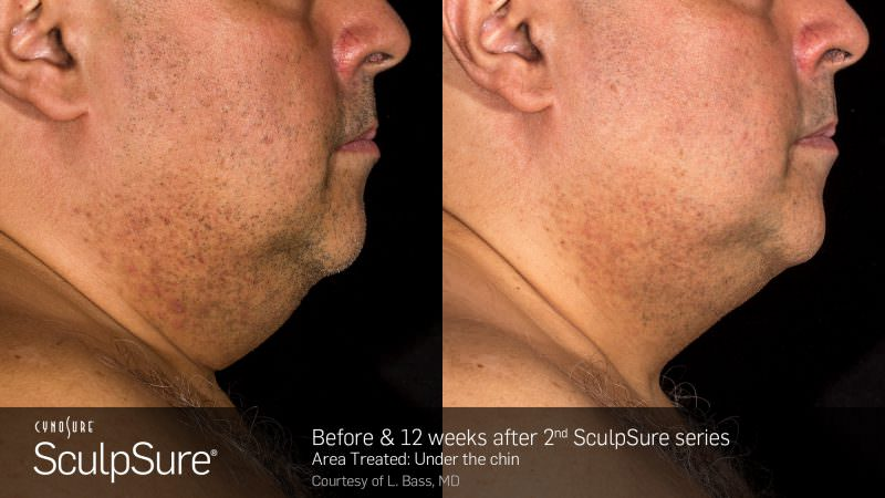 Before and 12 weeks after: Under the chin