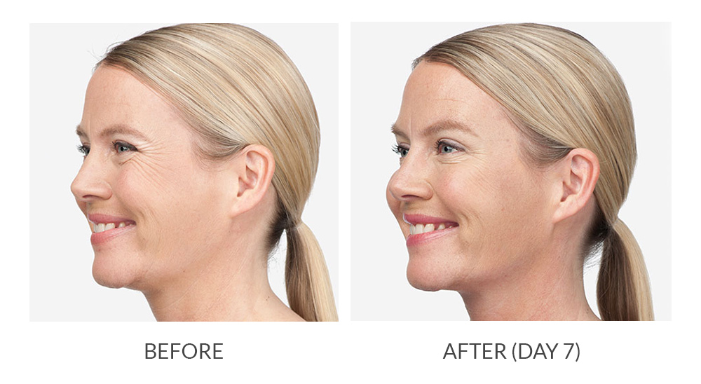 Before and after results for a patient who received Botox
