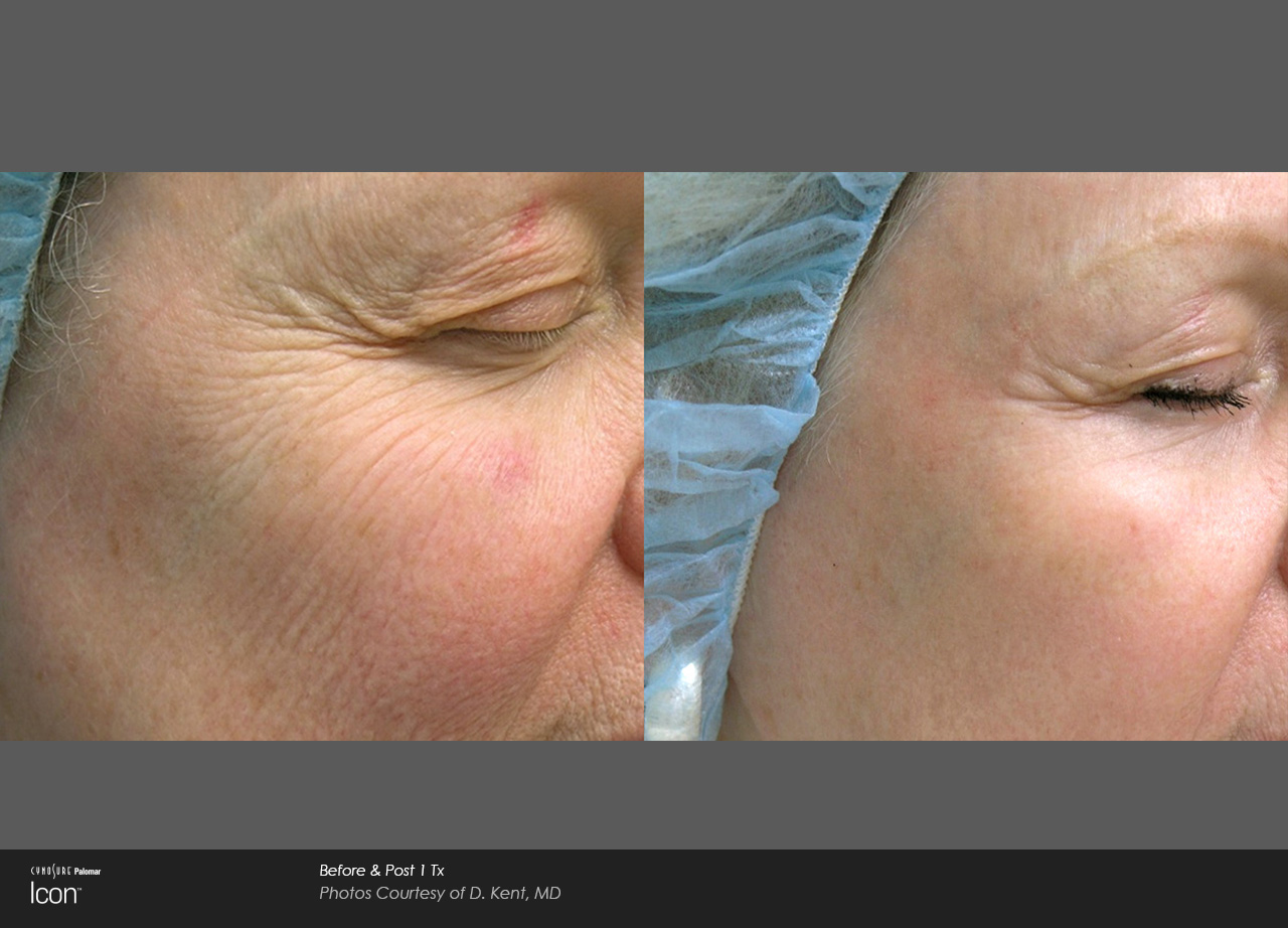 Before and after results for ICON skin revitalization