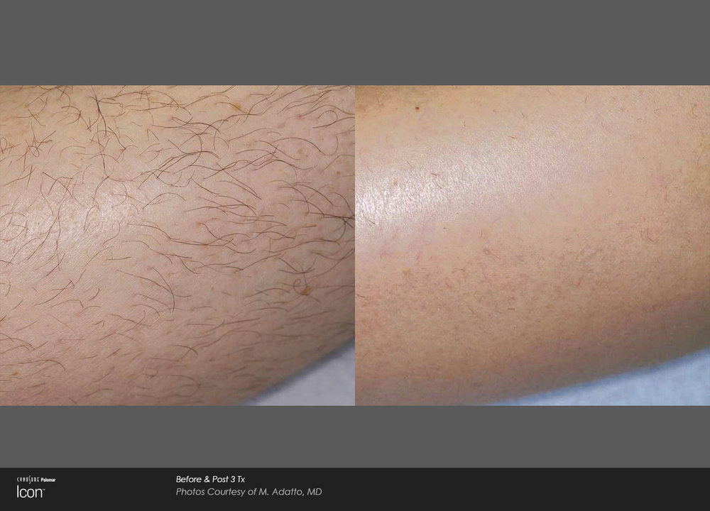 Before and after results for ICON laser hair removal